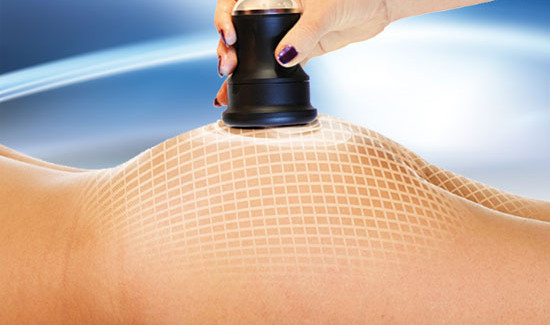 Kavitace: Druh liposukce, která nebolí